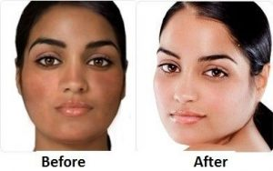 Skin-Whitening-With-The-Aid-Of-glutathione-pills